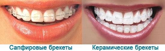 Сравнение какие брекеты лучше сапфировые или керамические