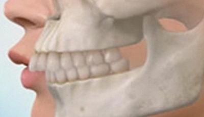 Сравнение степени выраженности зубочелюстной аномалии