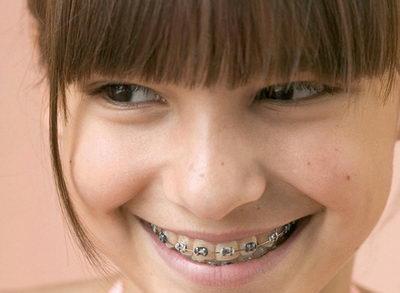 Установка брекетов нужна для выравнивания зубов