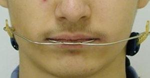 Вид лицевой дуги спереди - фото