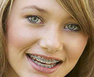 Фото девушки с металлическими брекетами на зубах