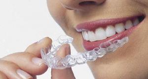 Каппы для выравнивания зубов и исправления прикуса