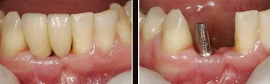 Зубные имплантанты до и после в эстетической стоматологии