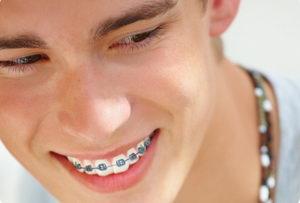 Брекеты на зубах - фото