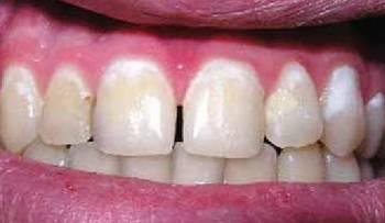 Деминерализация зубов