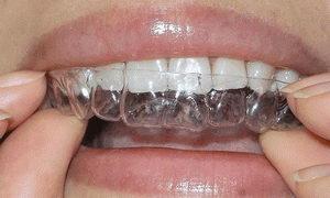 Эластичные капы для выравнивания зубов - фото