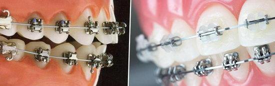 Какие брекеты лучше ставить металлические или эстетические?