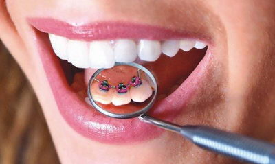 Лингвальные брекеты: отзывы пациентов