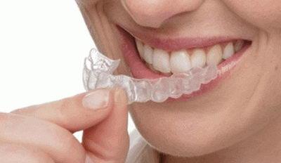Ношение прозрачных кап для зубов