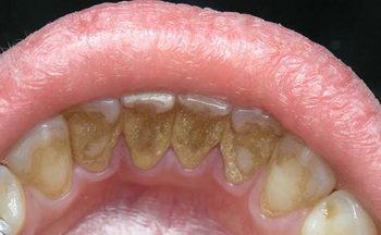 Ношение брекетов - появление зубного камня