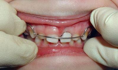 Поставить пластинку на зубы