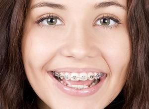 Для чего нужны скобы на зубы, что это такое, какие виды бывают и как ставятся?