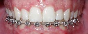 В каких случаях ставят брекеты на одну челюсть, виды несъемных систем