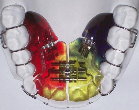 Пластинки на зубы для раннего лечения прикуса Частная