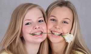 Девушки с брекетами - стиль и мода, установка несъемной системы на зубы