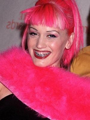 Гвен Стефани с брекетами на зубах