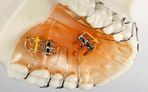 Что такое ортодонтическая пластинка, для чего ставят съемную аппаратуру и кому?