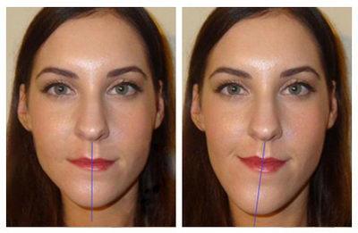 Перекрестный прикус - аномалия до и после лечения