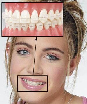 Установка эстетической системы выравнивания зубов