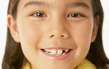 Ребенок с кривыми зубами