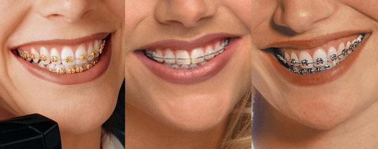 Виды брекетов, которые ставят на зубы