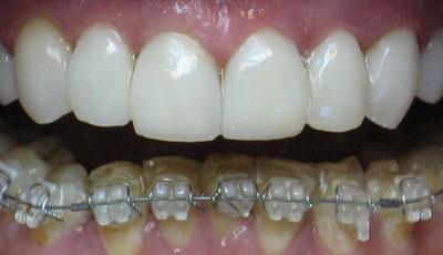 Установка нижних брекетов на зубы