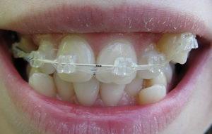 Брекеты до и после - результаты лечения в ортодонтии у взрослых и подростков