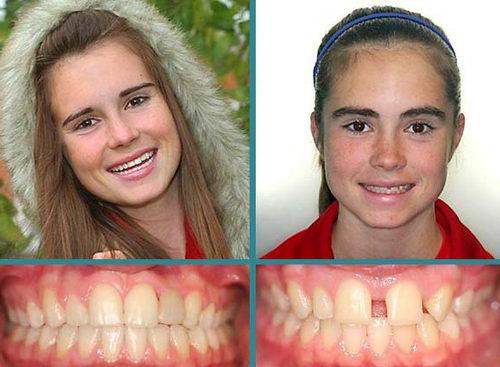 Диастема до и после лечения брекетами