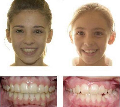 Девочка до и после брекетов