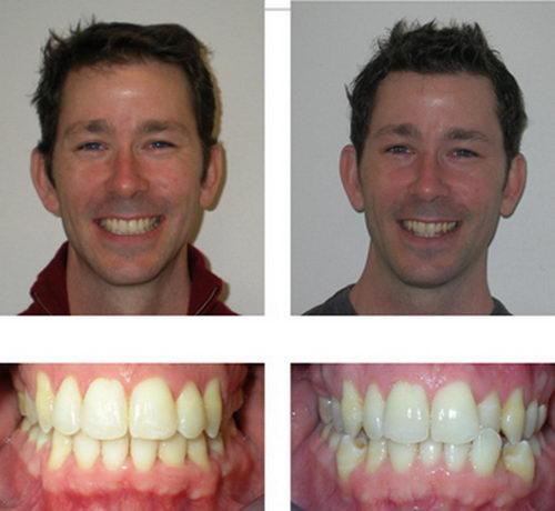 Лечение брекетами до и после