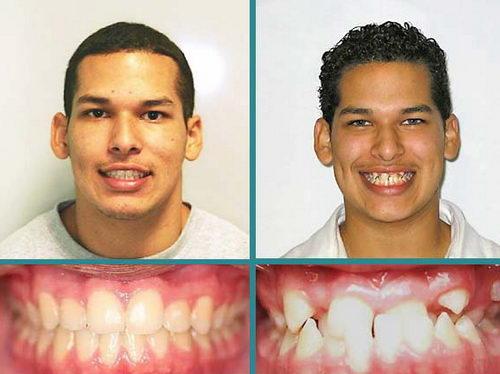 Перекрестный прикус фото до и после брекетов