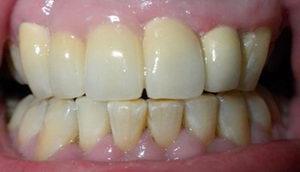 Что значит прямой прикус? Истираемость зубов, лечение аномалии