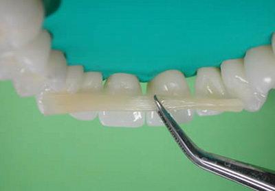 Шинирование подвижных зубов - фото