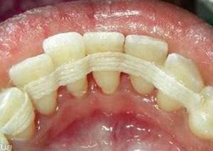 Шинирование зубов цена