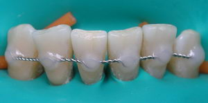 Шинирование зубов после брекет-системы, этапы установки, стоимость шин