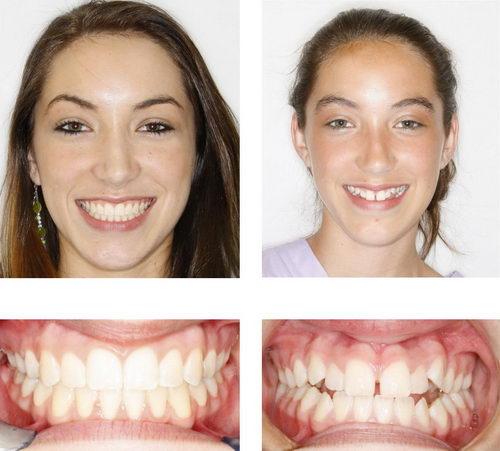 Зубы после брекетов у девушки