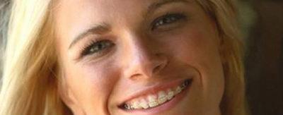 Брекеты на зубы после 30
