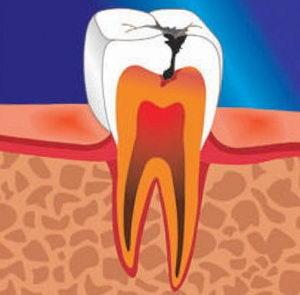 Что такое кариес зубов, причины, симптомы, методы лечения