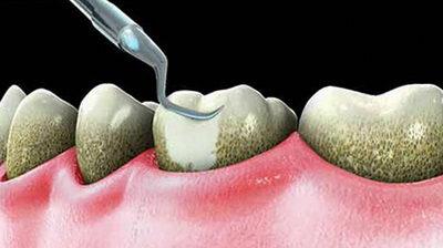 Кюрета для чистки камней на зубах