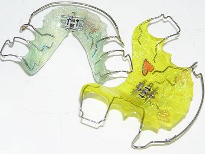 Пластинки детские на зубы: фото