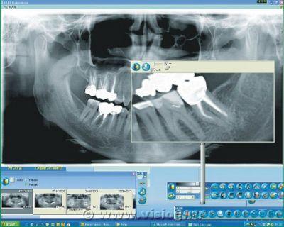 Снимок челюсти цифрового ортопантомографа