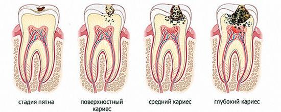 Стадии поражения зубов кариесом
