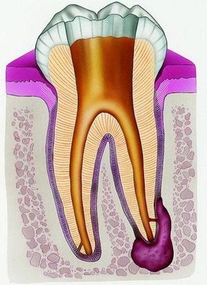 Гранулема зуба - стоматологическое заболевание, которое стоит быстро лечить и не нужно затягивать