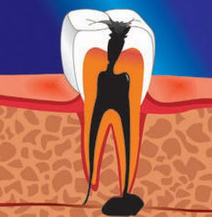 Периодонтит: виды и симптомы опасного зубного заболевания