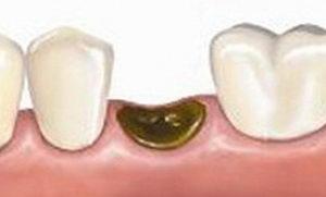 Альвеолит лунки появляется как осложнение после удаления зуба