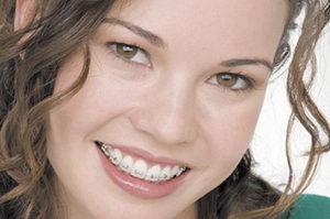 Реально ли поставить брекеты без удаления зубов, показания