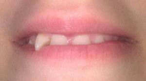Дистопированный зуб: что это такое, фото
