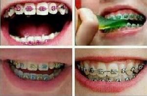 Популярные виды брекетов для выравнивания зубов