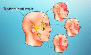 Воспаление тройничного нерва - выявление причин, распознование симптомов и лечение