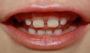 Фото: белые пятна на зубах ребенка